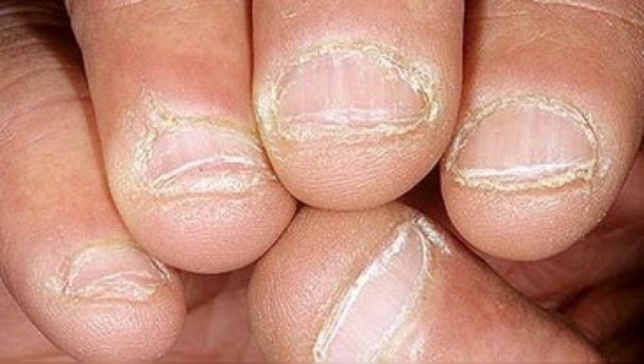 Hombre muere por no dejar de comerse las uñas - Diario CAMBIO