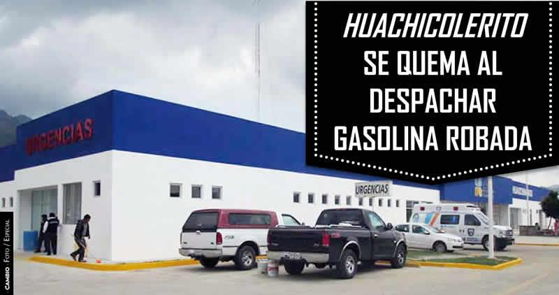 Huachicolerito sufre graves quemaduras en Tecamachalco