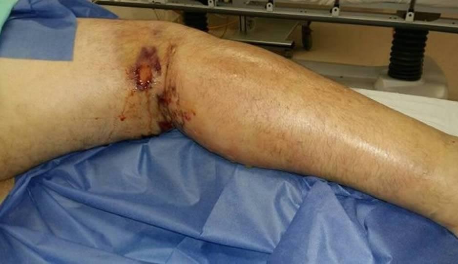 Fallece hombre que fue mordido por araña violinista
