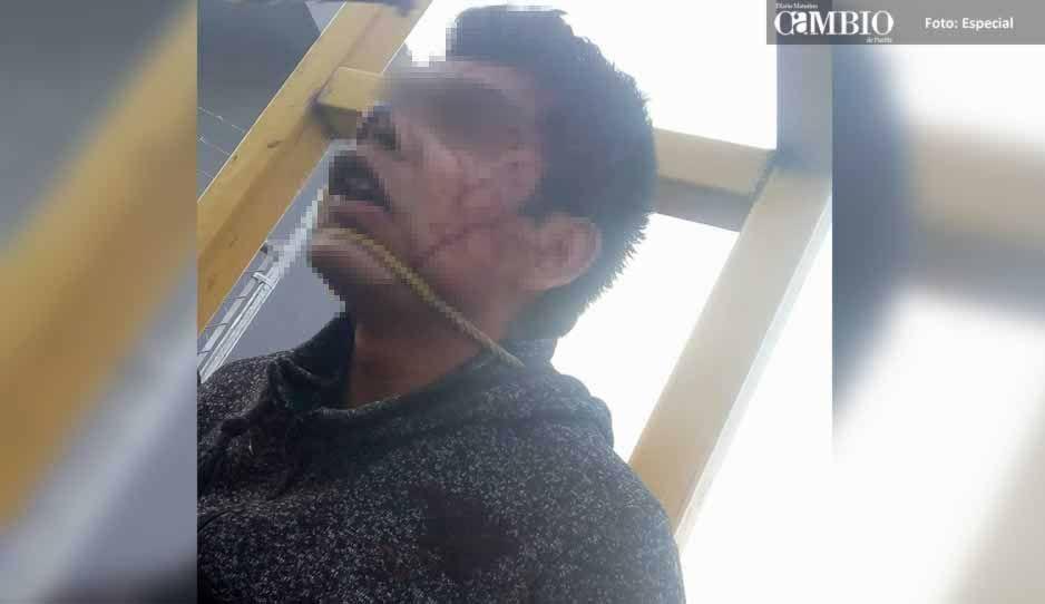 Frustran linchamiento de presunto delincuente en Juan C. Bonilla