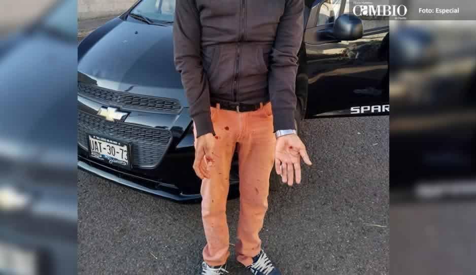 Sujeto lesiona a una mujer con arma blanca en Huejotzingo