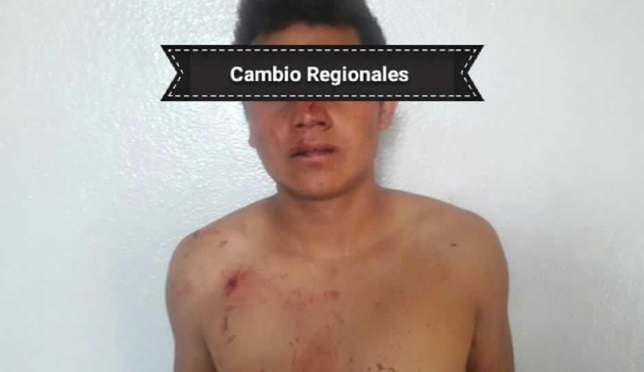 Rescatan a presunto ladrón luego de ser golpeado en Texmelucan