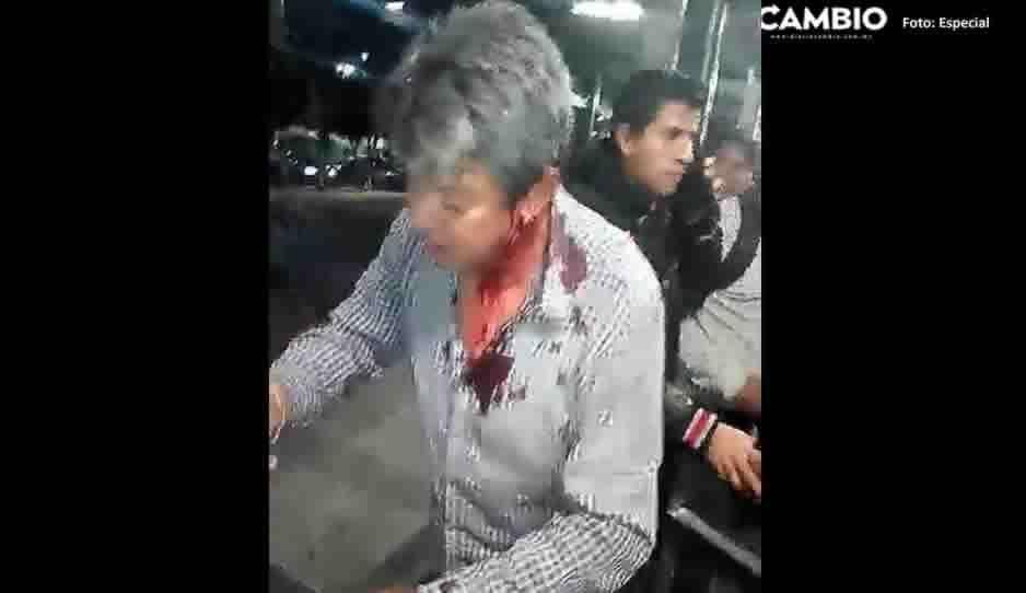 ¡El colmo! Vigilante agrede a macanazos a un usuario de la línea 3 de RUTA (VIDEO)