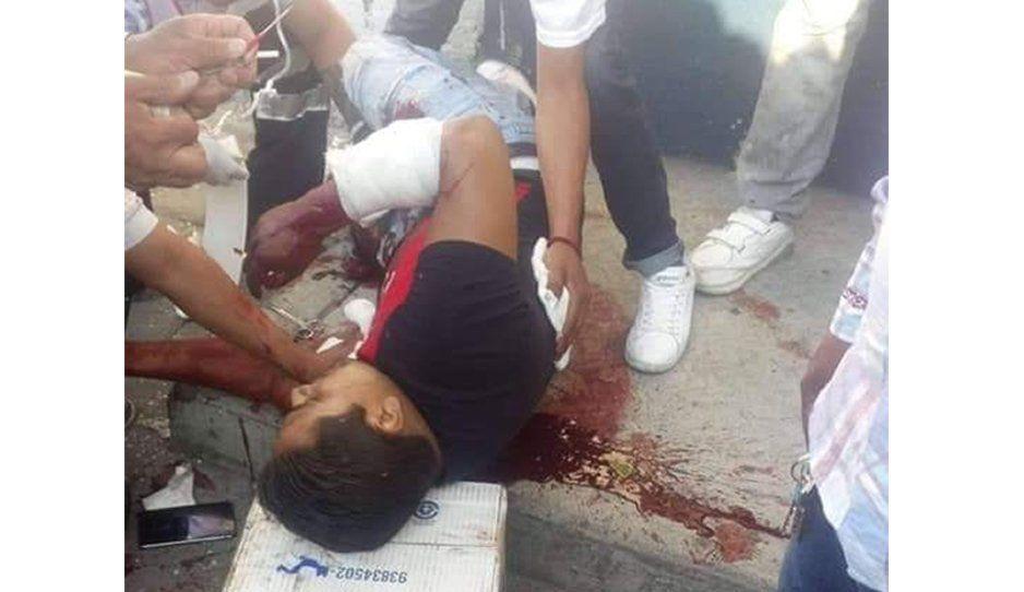 Muere uno de los rafagueados durante balacera en Huejotzingo