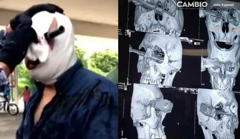 Pierde el ojo luego que le clavaran un cuchillo, tras discusión en estacionamiento de Soriana (VIDEO)