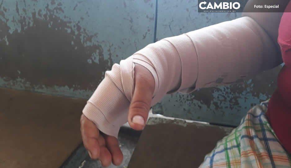 Mujer se resiste a asalto y le disparan en un brazo en Lomas de San Valentín