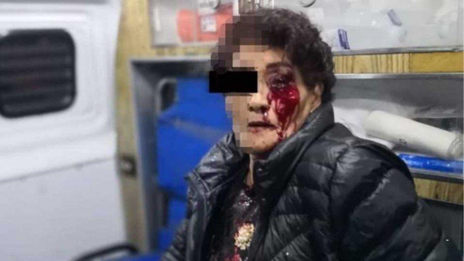 Suspenden a policías municipales que golpearon a viejita de Atlixco
