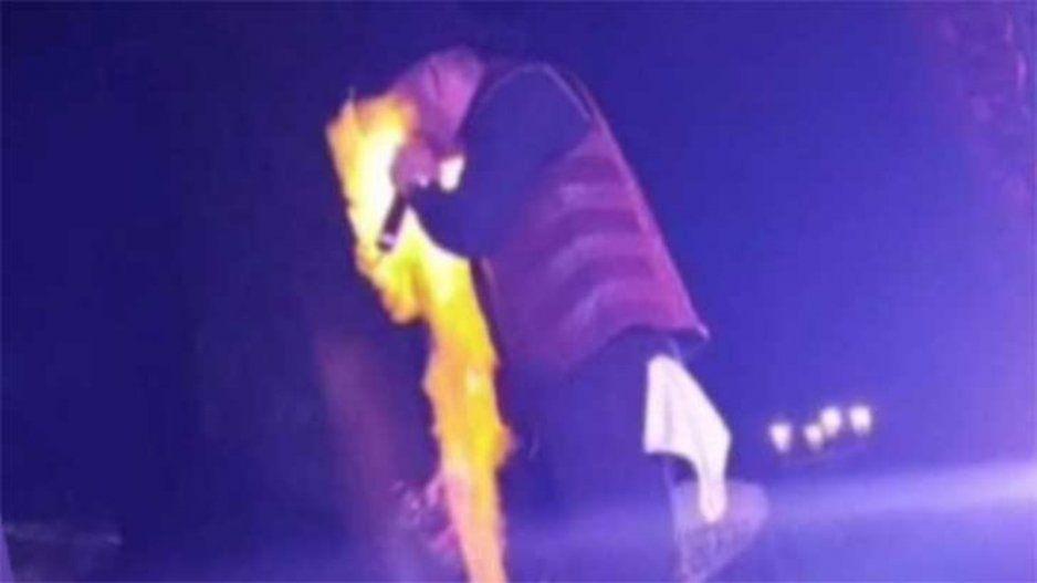 El Gallo Elizalde se quema el rostro durante concierto (VIDEO)