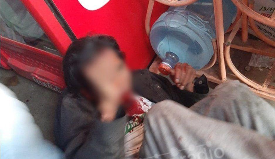 Vecinos vengadores le rompen la quijada a rata en la colonia Santa María (FOTOS)