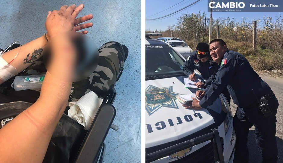 Policía de Cuautlancingo deja ir a conductora que atropelló a una mujer y le fracturó el brazo