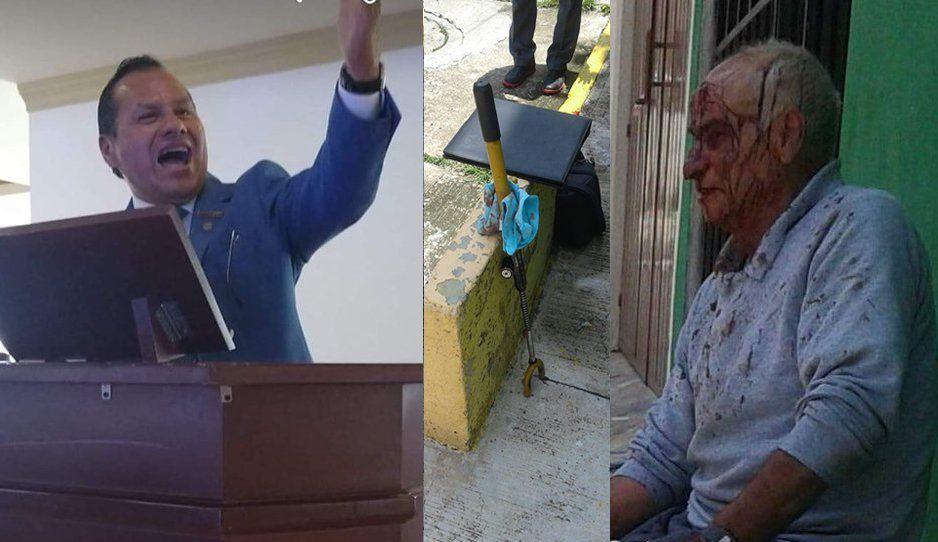 Vecino animal del Roble golpea con bastón de seguridad a viejito que le reclamó por tirar el agua