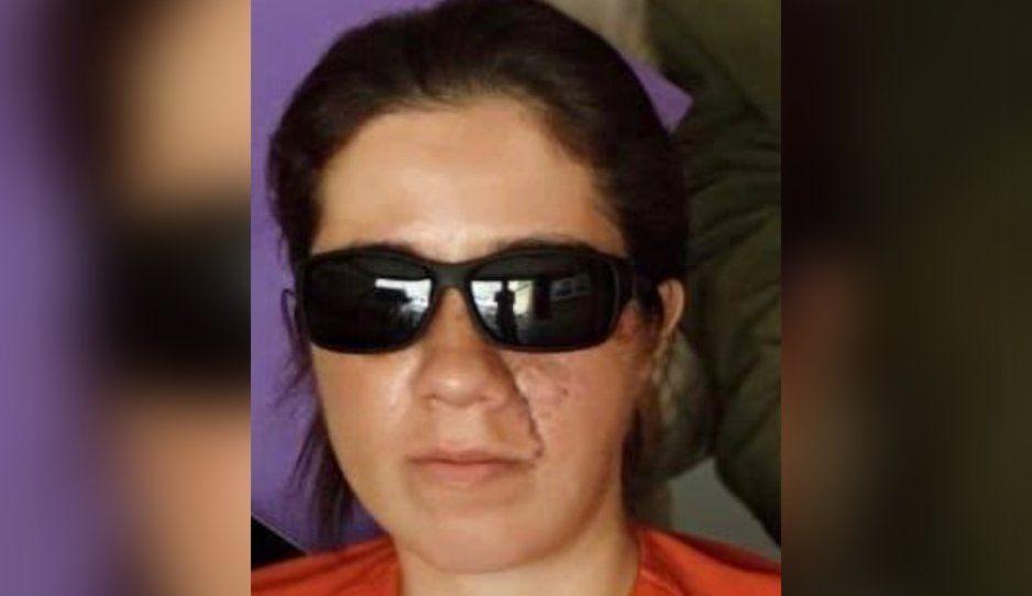 Así quedó la torera Hilda Tenorio tras las cirugías para recomponer su rostro de las heridas de la cornada