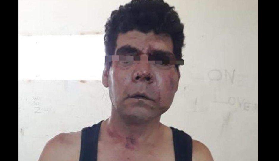 Vecinos de Amozoc linchaban a ladrón pero policía llega a rescatarlo