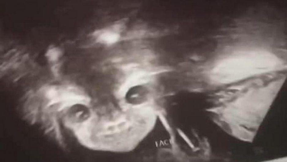 Ultrasonido muestra perturbadora imagen de una bebé demonio que sonríe (FOTOS)