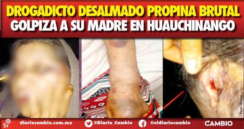 Drogadicto desalmado propina brutal  golpiza a su madre en Huauchinango