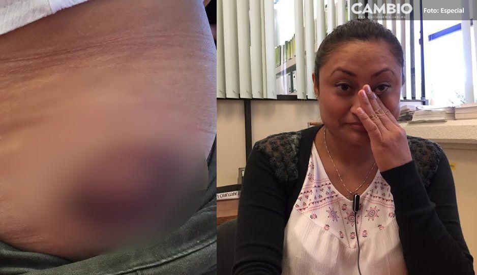 Atenderá DIF estatal caso de joven lesionada por petardo que aventó delegado en Izúcar