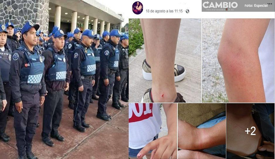 Inician proceso administrativo a policías por presuntas agresiones a una pareja en Xicotepec