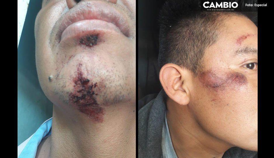 Policía auxiliar da brutal golpiza y encierra por horas a jóvenes de Tepeojuma