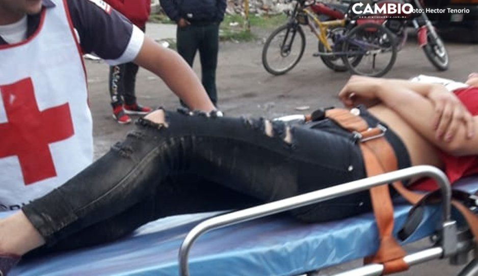 Jauría ataca a dos jovencitas en Texmelucan y terminan en el hospital