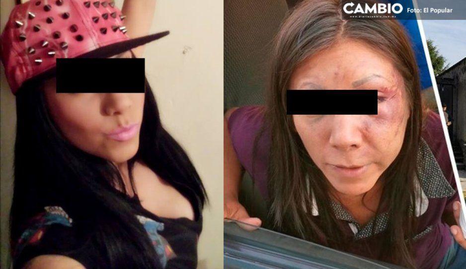 Bailarina Anny La Peke fue contratada y golpeada por un albañil que así la dejó (FOTO)