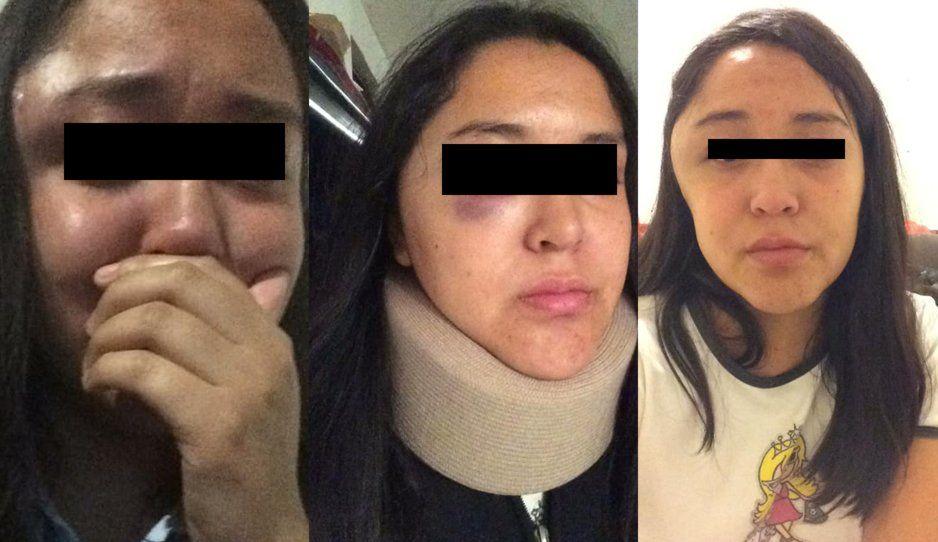 Mujer sobreviviente cuenta su historia: su esposo era infiel, le rompía los celulares por celos y casi la mata a puñetazos