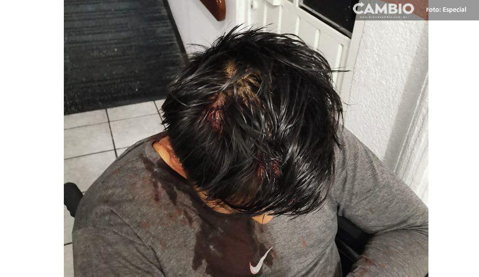 Amenazan de muerte a líder tianguista de Texmelucan