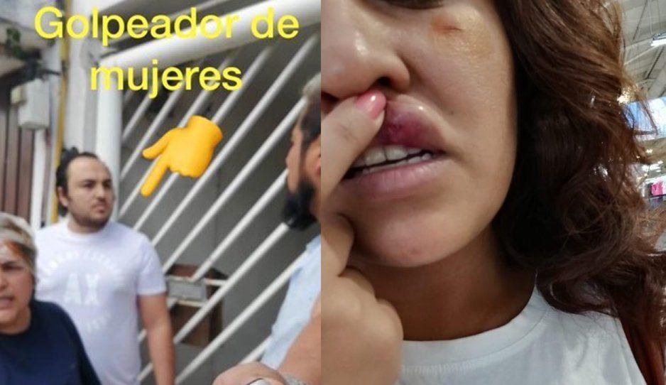 #LordGolpeaMujeres de Valle Dorado revienta a vecina de un derechazo (VIDEO)