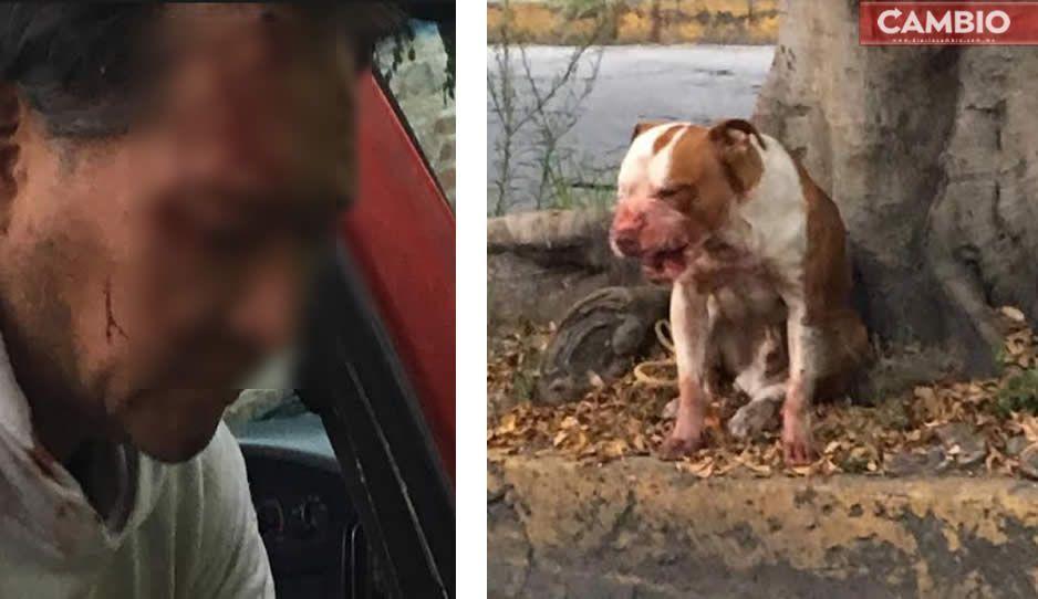 Pitbull ataca a vecino en Atlixco; le fractura un dedo