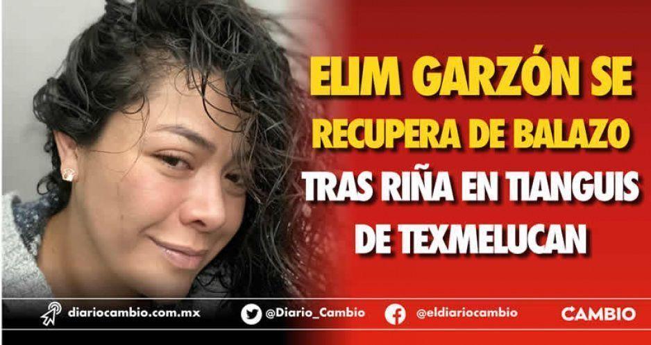 Elim Garzón se recupera de balazo tras riña en tianguis de Texmelucan