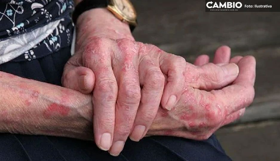 Los 10 casos de poblanos con lepra se registraron en Izúcar, Chignahuapan, Huejotzingo y Tepexi