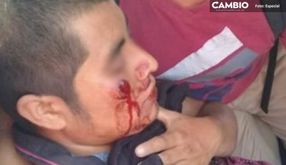Les disparan a indígenas en Chiapas; los acusan de ser portadores de Covid-19