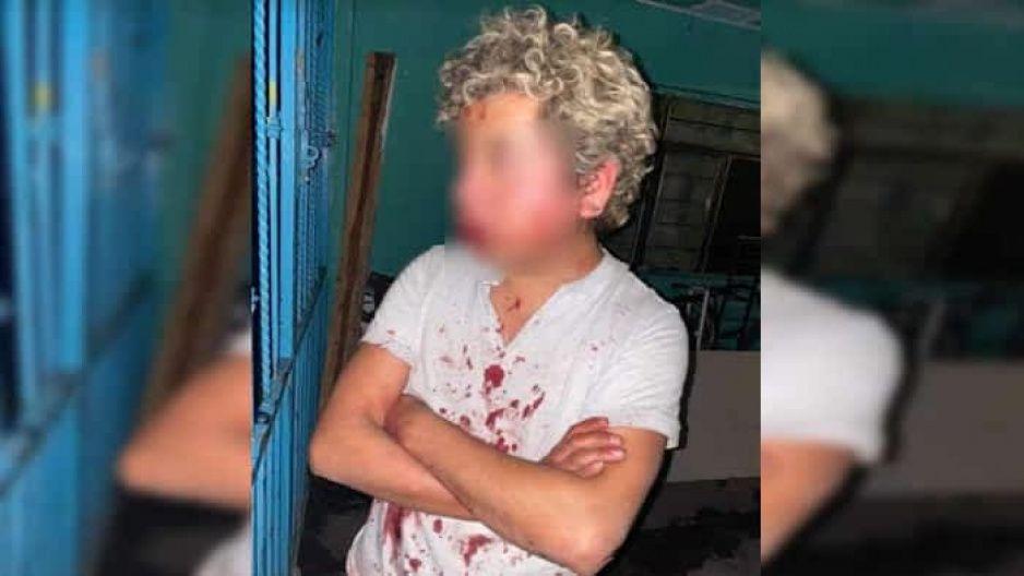 ¡Casi lo linchan! Vecinos golpean a joven que intentó robar casa