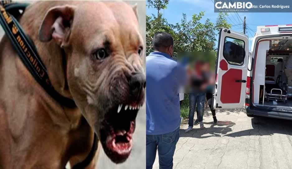 ¡Casi le arranca la cabeza! Pitbull ataca a mujer y le desfigura el rostro en Juan Galindo