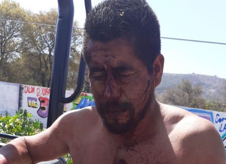 Policía Municipal de Amozoc atiende a herido tras riña en las Animas