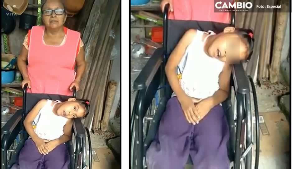 La pequeña Karely tiene discapacidad y necesita apoyo para gastos médicos ¡Ayúdala!