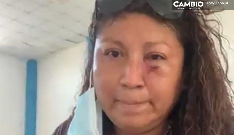 Regidora de San Francisco Altepexi acusa a edil de mandarla a golpear y amenazarla de muerte