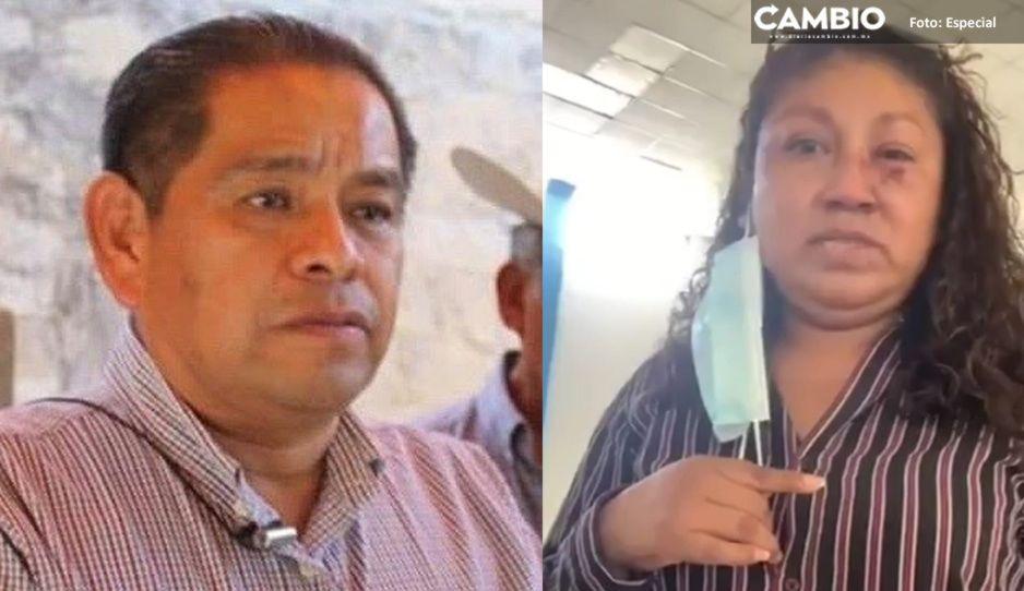 Niega alcalde de Altepexi haber mandado golpear y amenazar a regidora de Obras Públicas