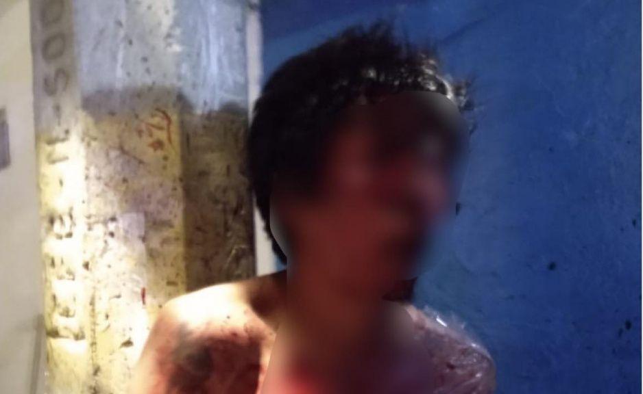 Justicieros de la Candelaria golpean a ladrón y lo amarran como puerco (FOTO)