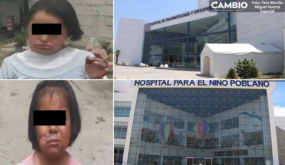 Niñitas quemadas con cuchillo por su abuelita fueron llevadas al HNP y a Traumatología