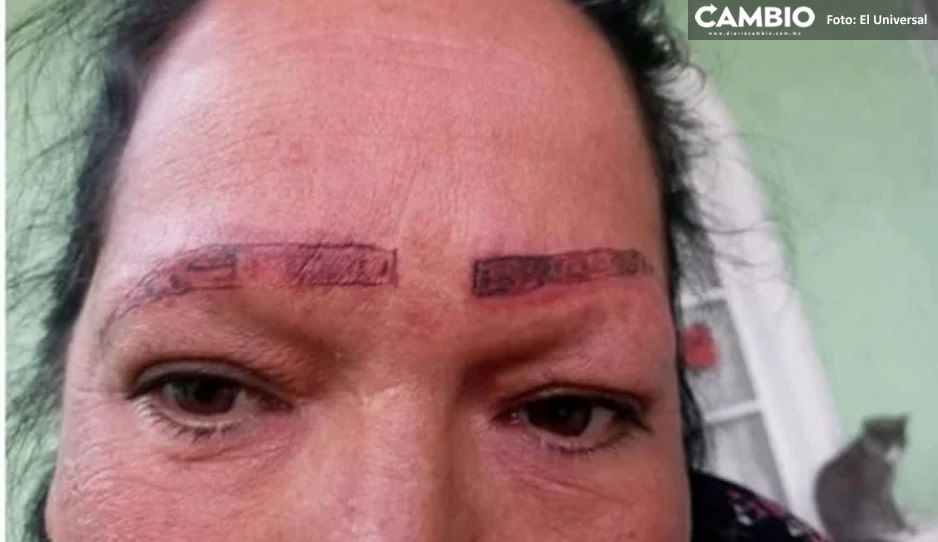Mamá de Teresita quería cejas de actriz de novela y termina chamuscada tras tatuarse